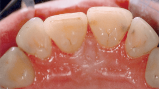 Caries after GBT treatment