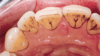 Caries before GBT treatment