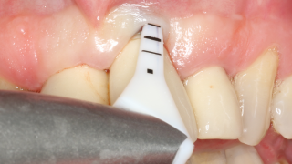 implant maintenance with perioflow 16 x 9